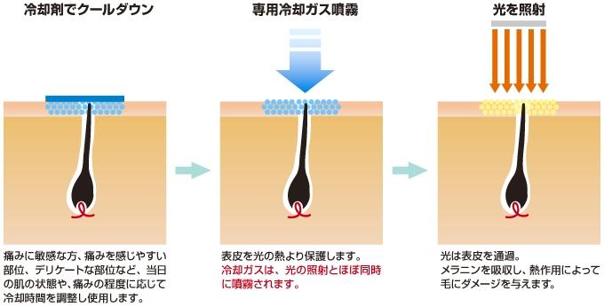 専用冷却ガス