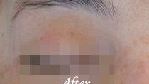 眉脱毛 施術後